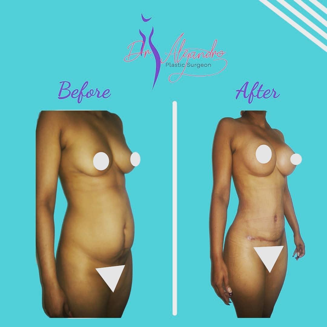 Abdominoplastía, Aumento de senos y Liposucción-Dr Alejandro Mora