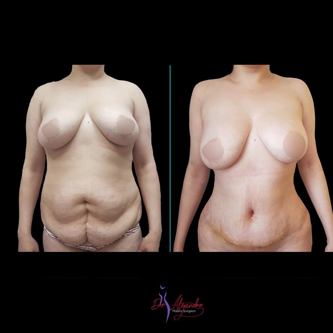 Abdominoplastía - Dr Alejandro Mora 3