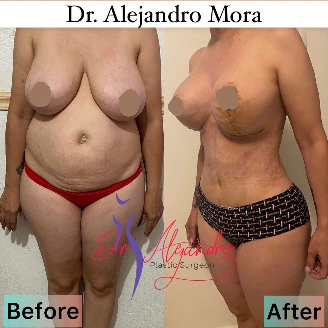 Addominoplastía, Liposucción y Elevación de Mamas - Dr Alejandro Mora