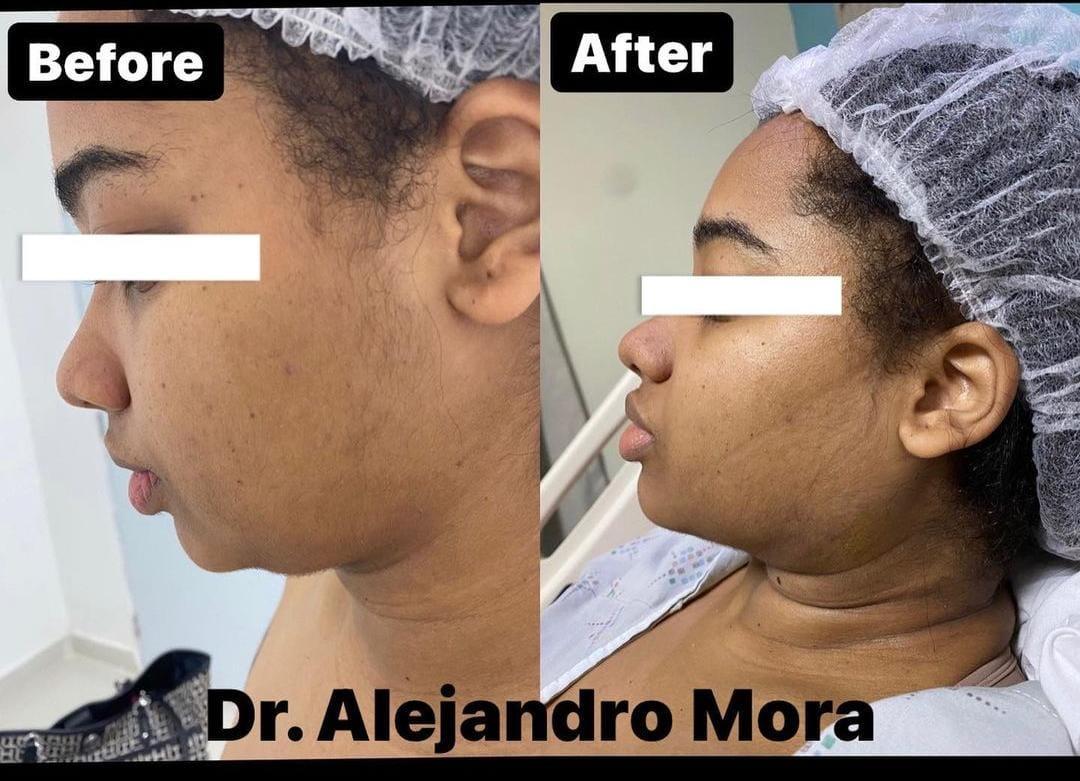 Lipopapada 4 - Dr Alejandro Mora