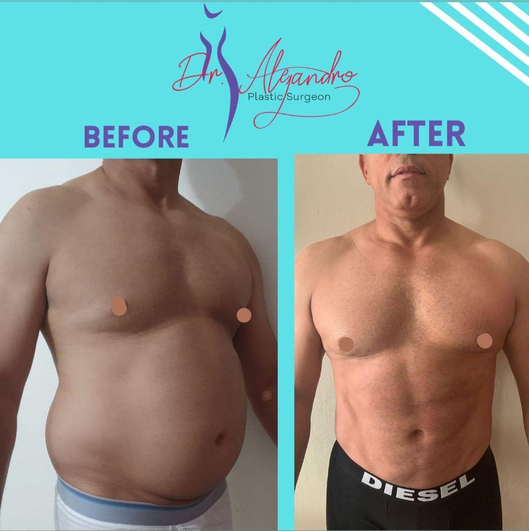 Liposucción - Dr Alejandro Mora