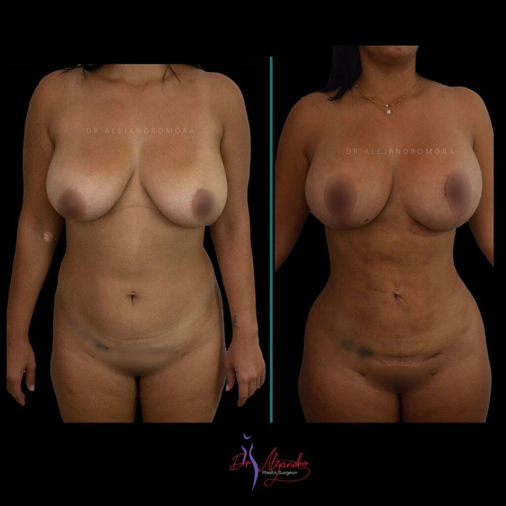Liposucción-Dr-Alejandro-Mora1-1024x1024