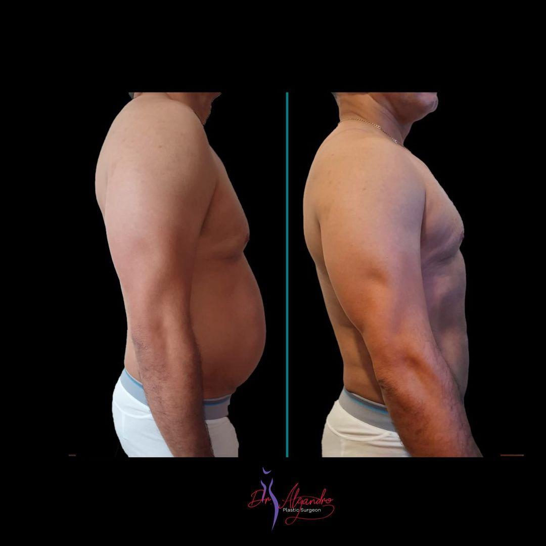 Liposucción - Dr Alejandro Mora1