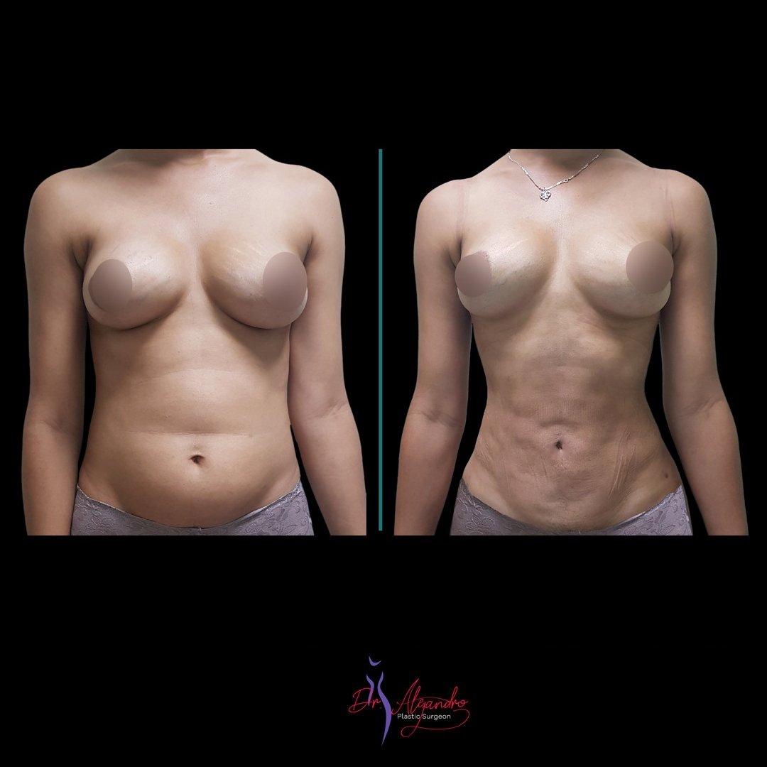 Liposucción-Dr-Alejandro-Mora5