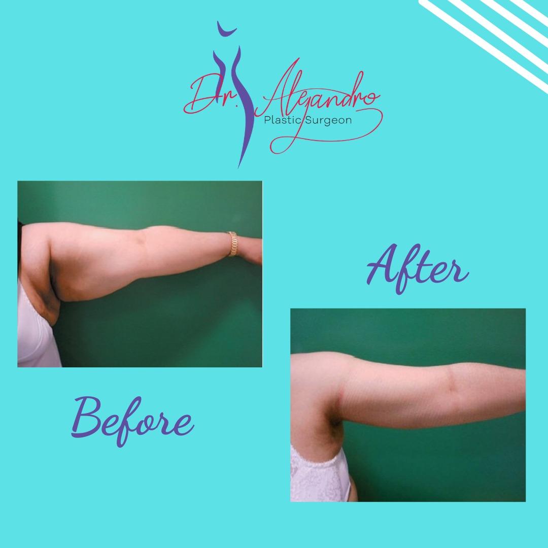 Liposucción en Brazos Dr Alejandro Mora - Cirujano Plástico y Reconstructivo
