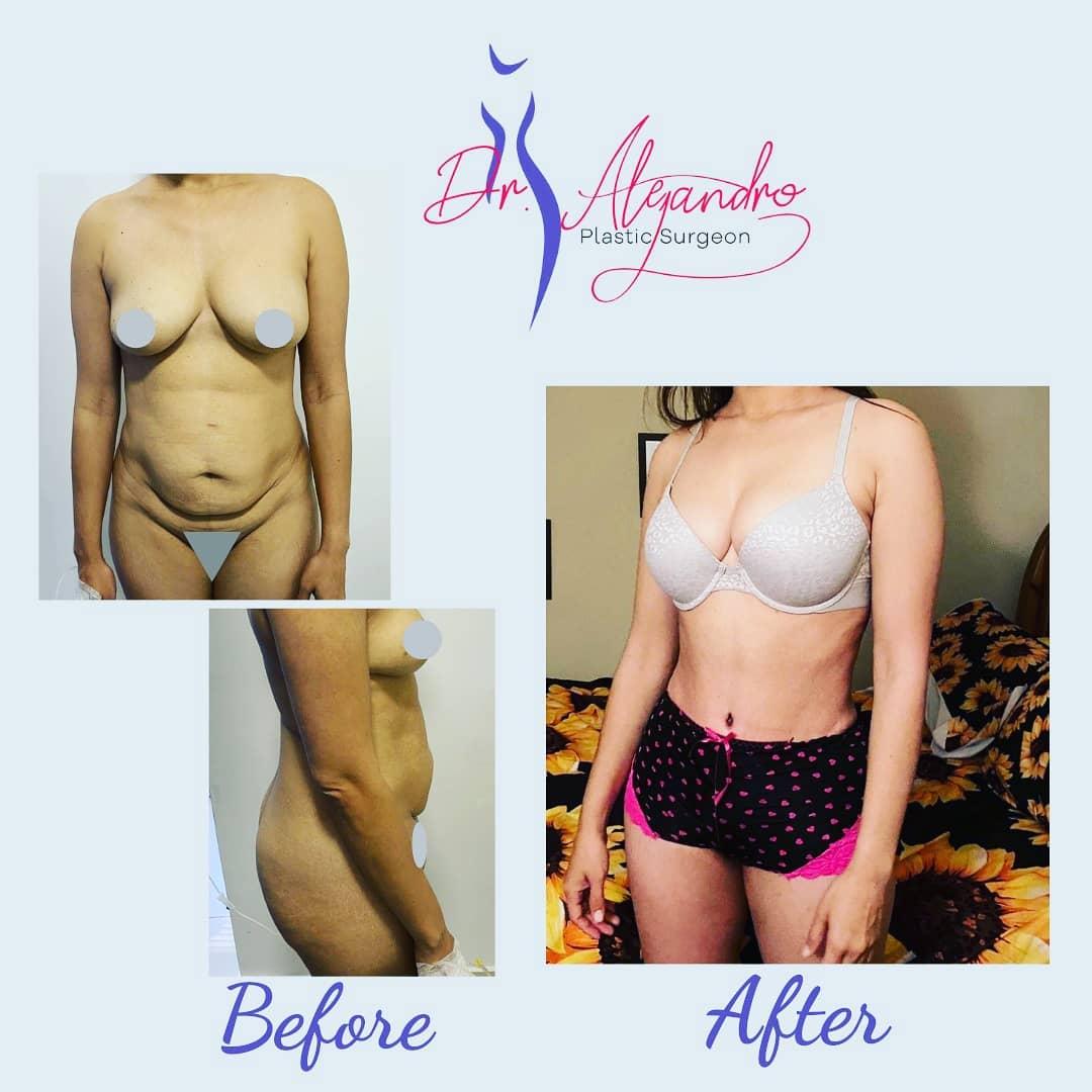 Liposucción y Abdominoplastía 1 - Dr Alejandro Mora
