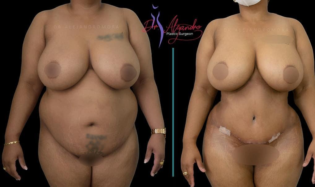 Liposucción y Abdominoplastía - Dr Alejandro Mora