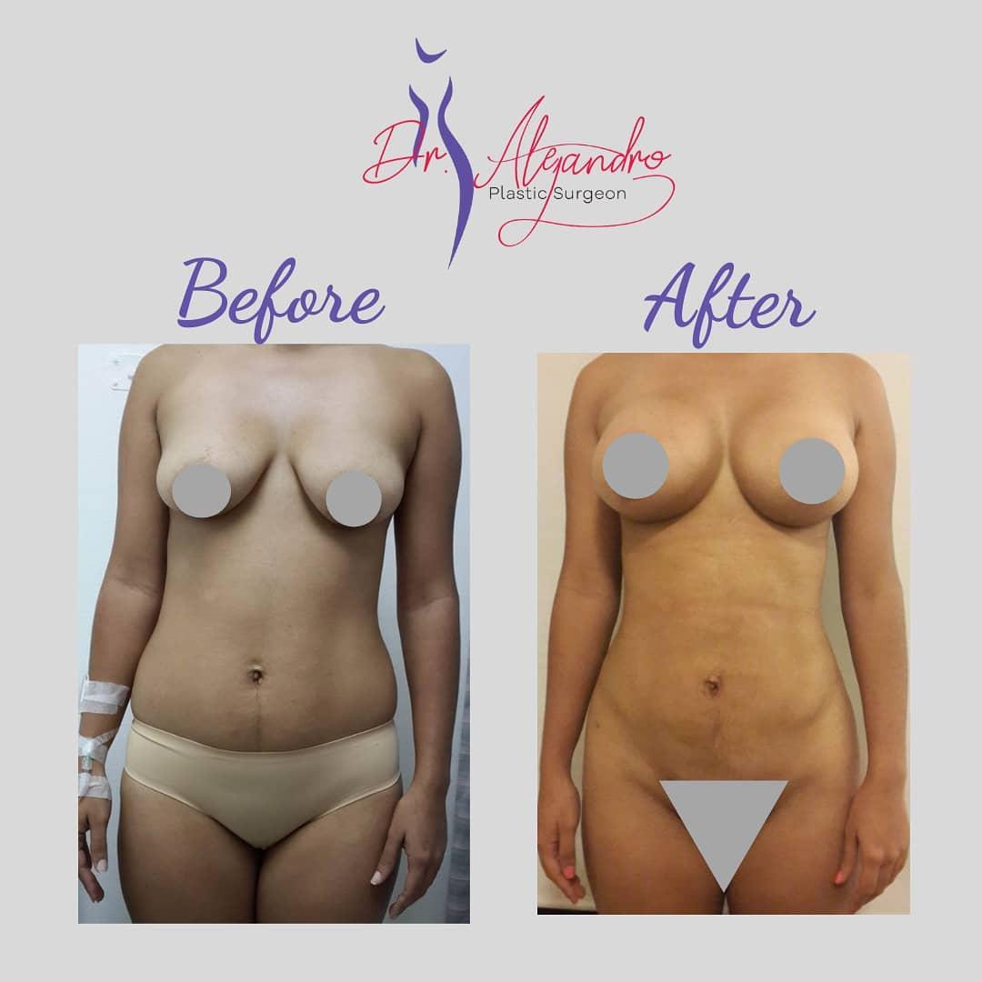 Liposucción y Aumento de senos 2 - Dr Alejandro Mora